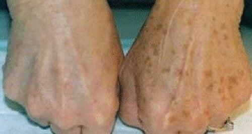 Flecken-Hände