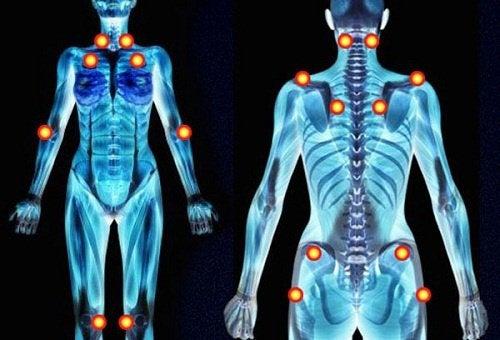 Fibromyalgie - mysteriöse Schmerzen