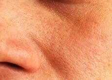 Hausmittel-für-feine-Poren