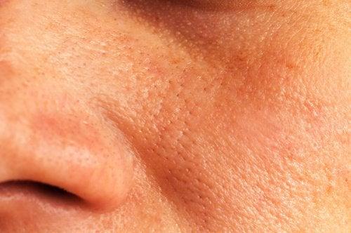 Natürliche Hausmittel gegen große Poren
