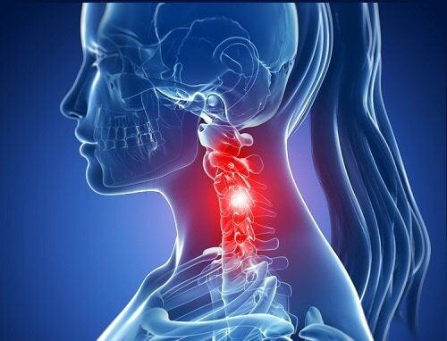 Nackenschmerzen - Was kann ich tun?