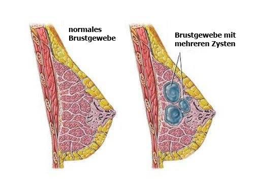 Tipps zur Erkennung und Vorbeugung von Brustzysten