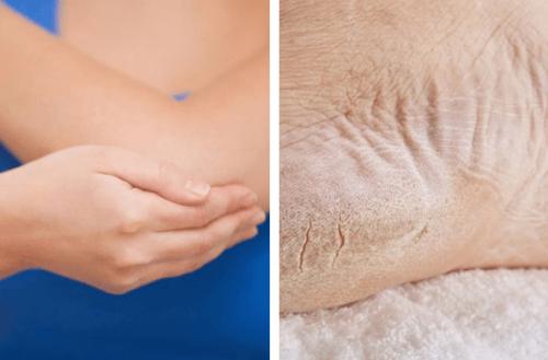 Trockene Füße und Ellenbogen – In einer Woche zu gesunder Haut