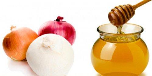 Zwiebeln und Honig für die Zwiebelkur gegen Haarausfall