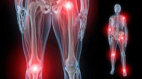 Gelenkschmerzen bei Fibromyalgie