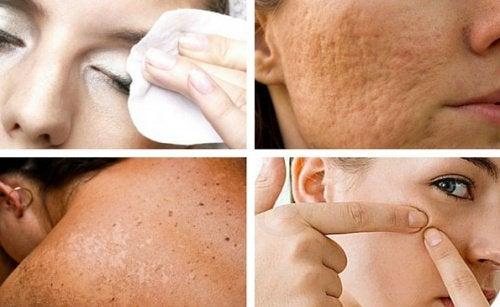 7 Angewohnheiten, die deiner Haut schaden – und die du leicht vermeiden kannst