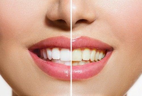 Weiße Zähne mit Bananenschale