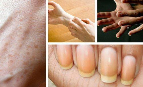 9 Dinge, die deine Hände über deine Gesundheit verraten