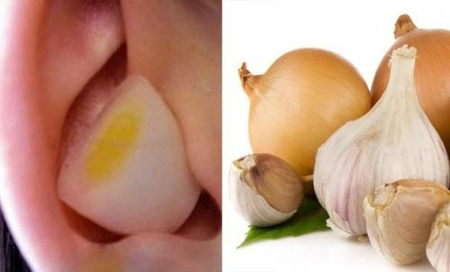 Knoblauch und Zwiebel im Ohr wirken Wunder