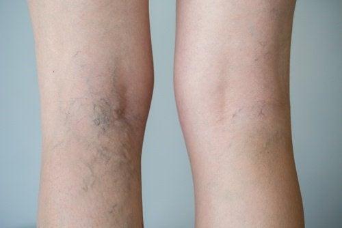 Krampfadern und geschwollene Beine