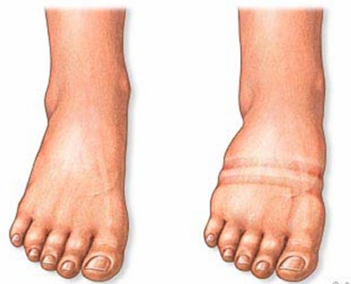 Wasserablagerungen im Körper bei Nierenprobleme