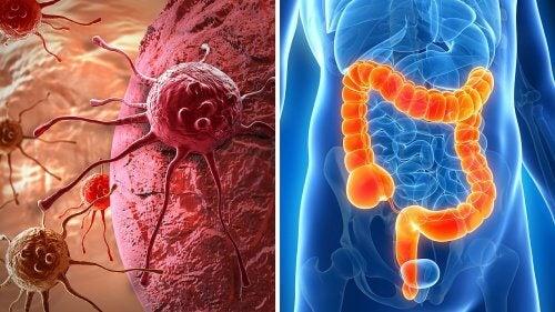 Mögliche Symptome für Darmkrebs entdecken