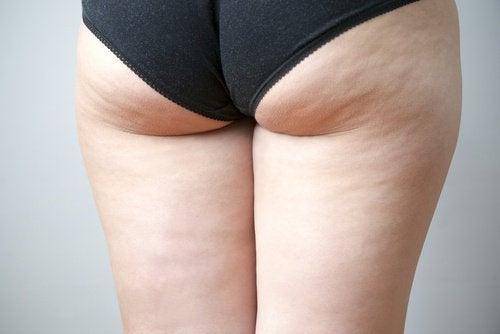 Cellulite durch Bürsten der Haut verbessern