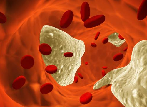 Cholesterin-im-Blut