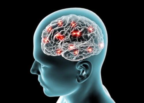 gesundes Gehirn durch Tee