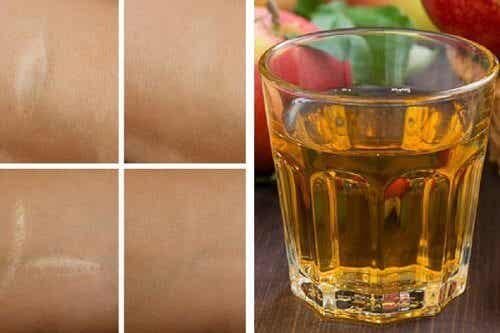 Antioxidatives Gesichtswasser gegen Falten, Narben und Sonnenbrand