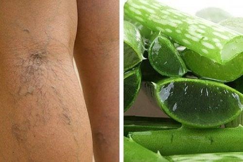 Ergänze die Therapie deiner Krampfadern mit Aloe Vera