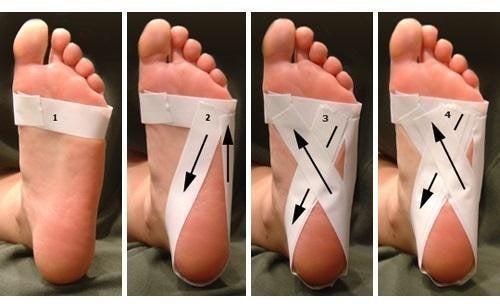 Natürliche Behandlung von Schmerzen in der Ferse - Besser ...