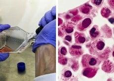 Wissenschaftler-entdecken-eine-Möglichkeit-wie-Leukämiezellen-sich-selbst-zerstören-können