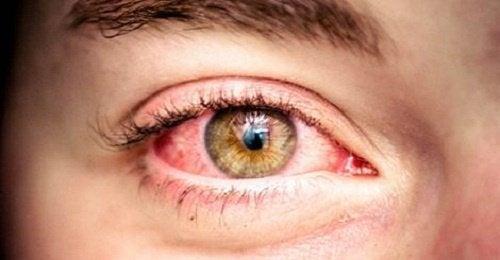 Rote-Augen