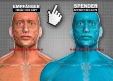 Kopftrasplantation1