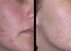 Natürliche-Behandlungen-gegen-Aknenarben