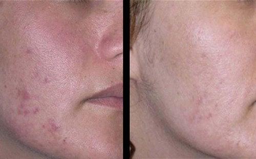 Natürliche Behandlungen gegen Aknenarben