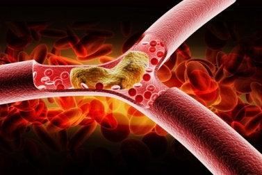 Schlechtes-Cholesterin