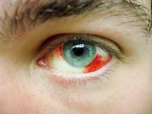 Warum kommt es zu Augenblutungen?