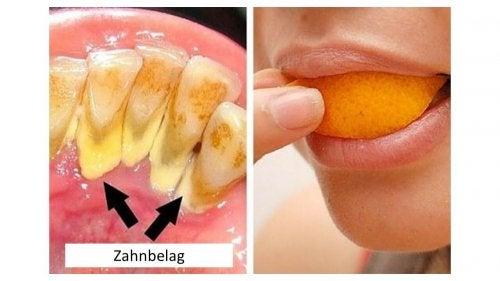 5 natürliche Mittel zur Entfernung von Zahnbelag