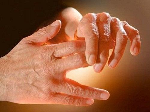 Schmerzen-Hand