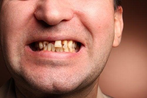 Schlechte-Zähne