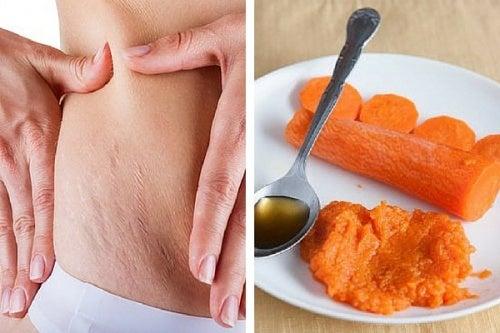 Mit Karotten gegen Schwangerschaftsstreifen? Leider nicht!