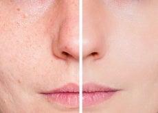 Behandlung-mit-Tomate-gegen-fettige-Haut-und-Akne