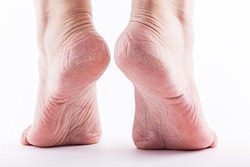 Reife Füße in den Fersen