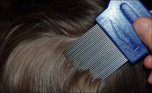 Was tun bei Kopflausbefall? 10 Tipps