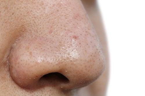 5 Gesichtsmasken Gegen Mitesser Besser Gesund Leben