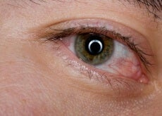 Auge rot
