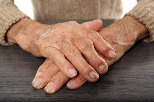 Avocado-arthritis