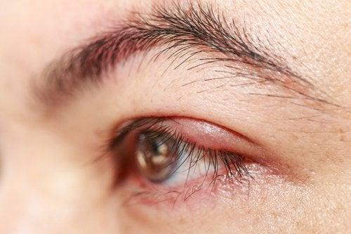 Rizinusöl für gesunde Augen
