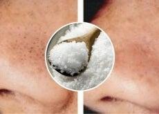 Salz gegen Pickel und Hautunreinheiten