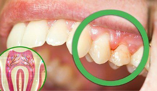 5 Gründe für Zahnschmerzen