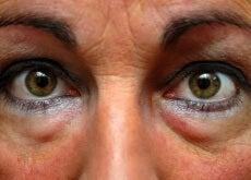 Augen (3)