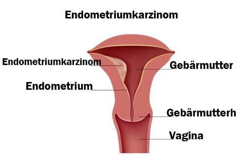 Endometriumkarzinom