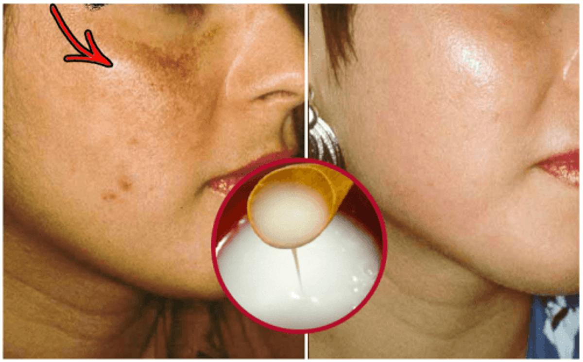 Bildergebnis für Diese natürliche Gesichtsreinigung hilft gegen Flecken und Falten