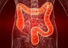 Colitis-ulcerosa-eine-noch-unbekannte-Darmerkrankung