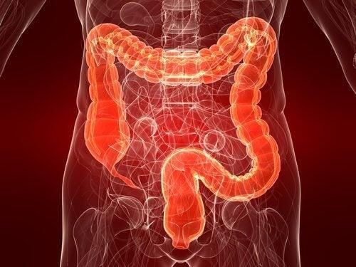 Colitis ulcerosa: eine noch unerforschte Darmerkrankung