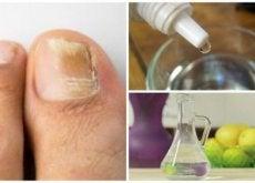 Hausmittel gegen Nagelpilz