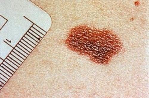Die häufigsten Hautkrankheiten: Hautkrebs