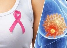 Kontrastmittel-Pille-könnte-die-Brustkrebsdiagnose-verbessern